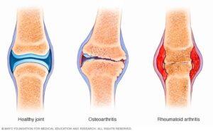 1. porovnanie zdravého kĺbu, osteoartirify a rematodinej artiritidy